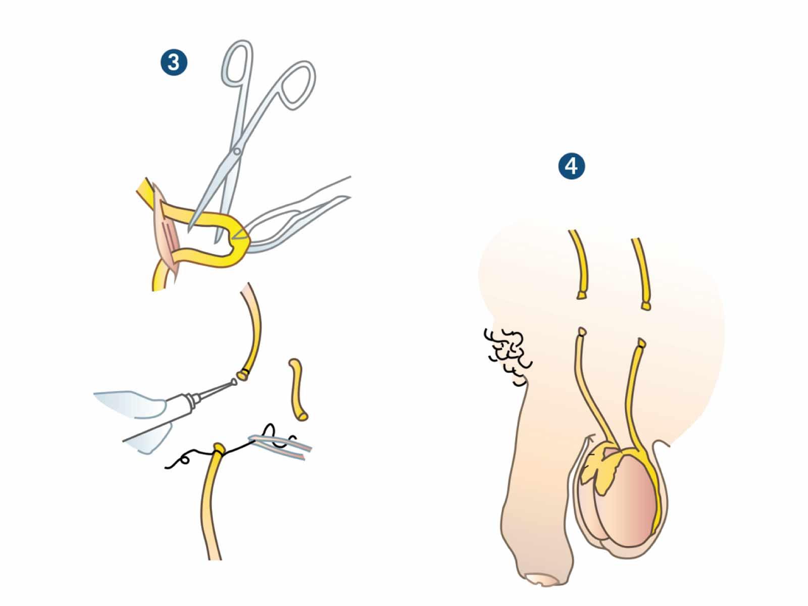 Vasektomie schmerzen nach Chronisches Schmerzsyndrom